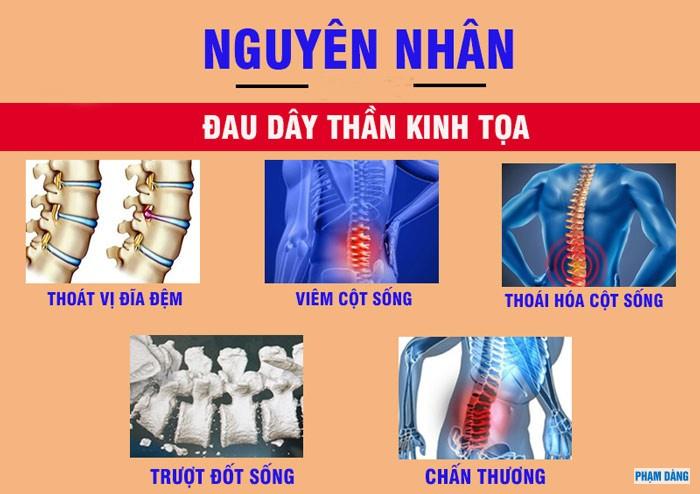 30-dau-day-than-kinh-toa-nguyen-nhan-bieu-hien-va-cach-dieu-tri-benh-2.jpg